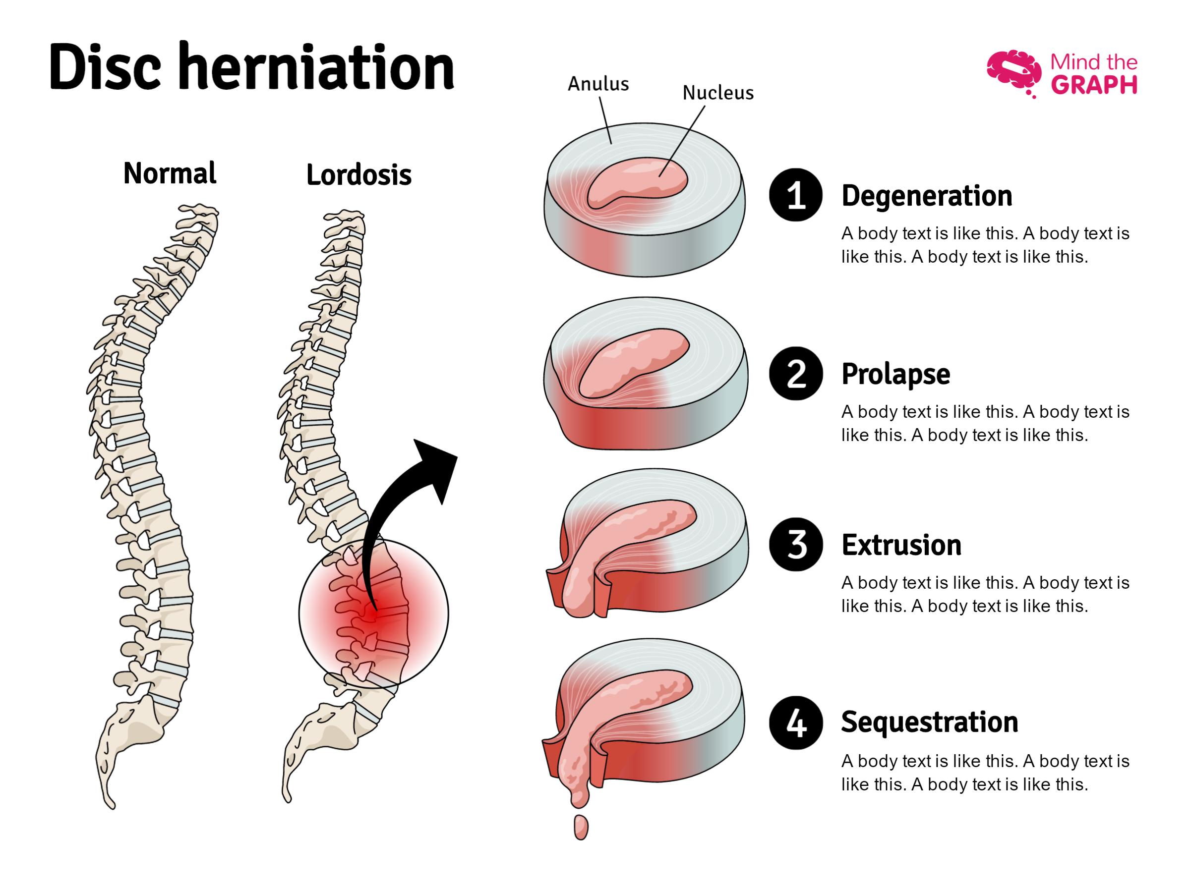 Ziemlich Layout Of Internal Organs Ideen - Anatomie Ideen - finotti.info